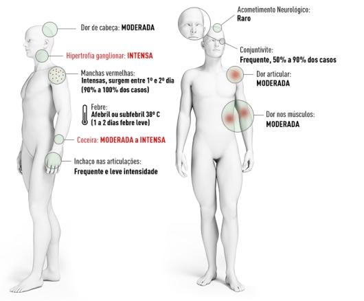 SINTOMAS-zika-140716